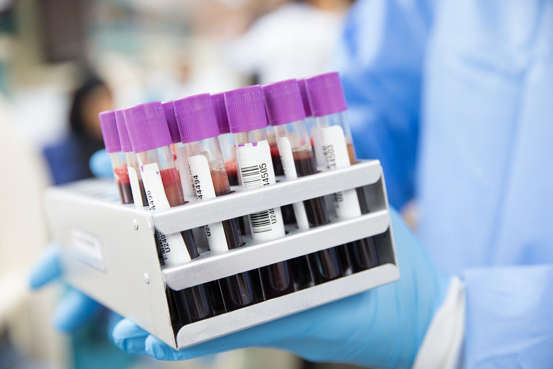 Exame de sangue