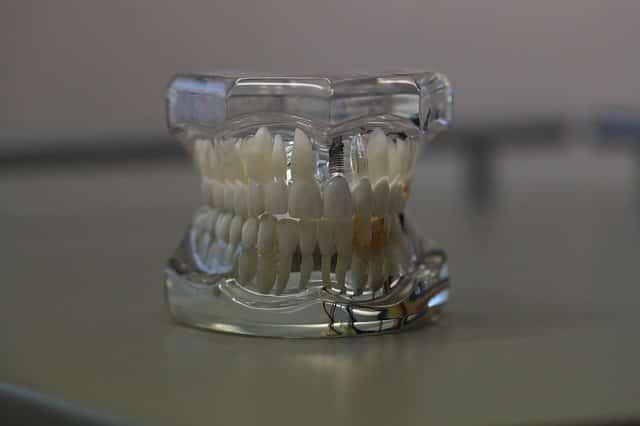 dentistry 668214 640