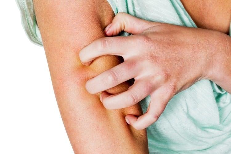 remedios caseiros para tratar coceira de pele